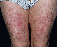 Folliculitis on Thighs