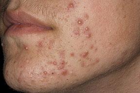 Folliculitis Pictures Healthhype Com