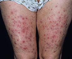 Folliculitis on Thighs